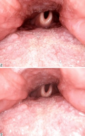 Views of the oropharynx, the base of the tongue, and the epiglottis, taken with the Iris HD USB 3.0 intraoral camera using different points of focus. Photos courtesy of the author.