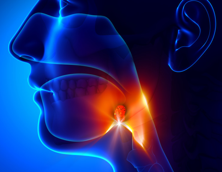 The epidemic of throat cancer sweeping the industrialized